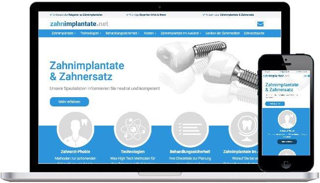 zahnimplantate.net